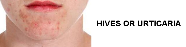 HIVES OR URTICARIA